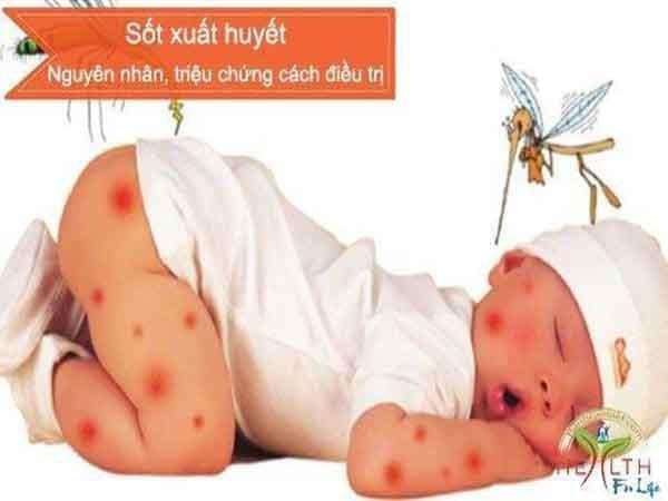 Dấu hiệu điển hình của bệnh sốt xuất huyết ở trẻ em