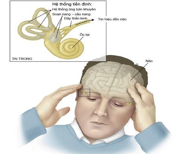 Bị tê mặt có thể là dấu hiệu của những bệnh nào? 2