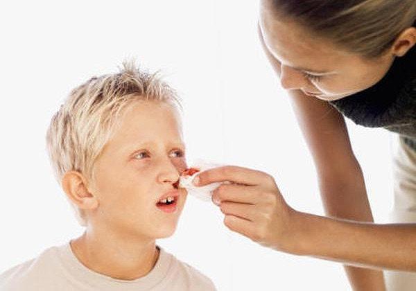 Nguyên nhân, dấu hiệu và cách điều trị triệu chứng tăng bạch cầu ở trẻ 3