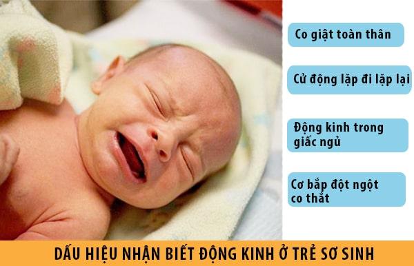 Dấu hiệu nhận biết bệnh động kinh ở trẻ sơ sinh