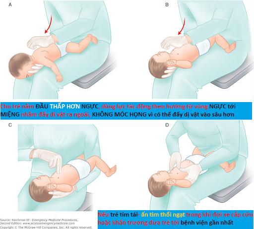 Cách xử lý khi trẻ bị hóc