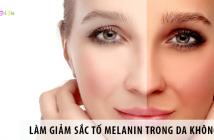 Làm giảm sắc tố Melanin trong da không khó như bạn nghĩ